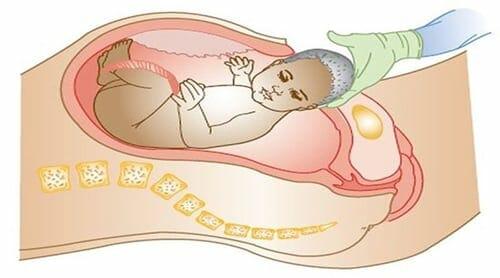 معلومات عن الولادة القيصرية وكل ما يخصها