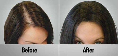 ما هو أفضل علاج لتساقط الشعر عند النساء