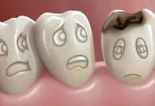 أنواع تآكل الأسنان