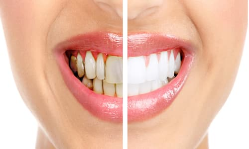 طرق علاج تسوس الأسنان الأمامية