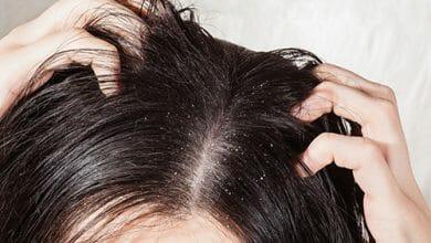 **كيف أتخلص من القشرة وتساقط الشعر