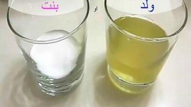 تحليل الكلور للحمل وتغير لون البول