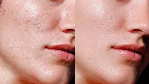 ماسك لتبييض الوجه وازالة البقع