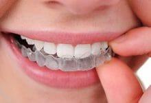 أبرز مميزات وعيوب التقويم الشفاف للأسنان