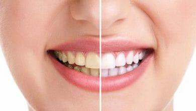 أسباب تكون الجير على الأسنان
