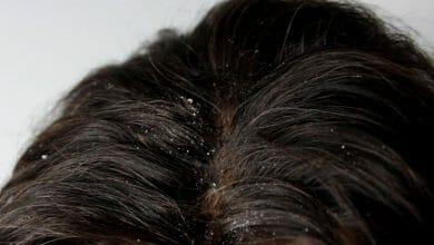 طريقة للتخلص من القشرة وتساقط الشعر