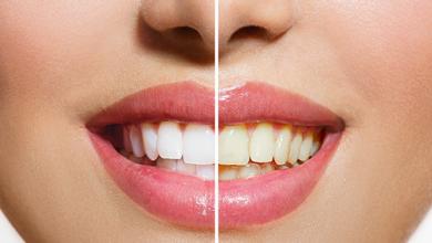 أسباب إصفرار الأسنان وكيفية الوقاية منها