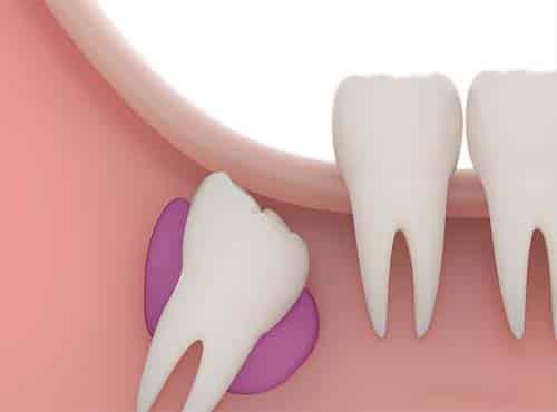 كم عدد أسنان الإنسان البالغ